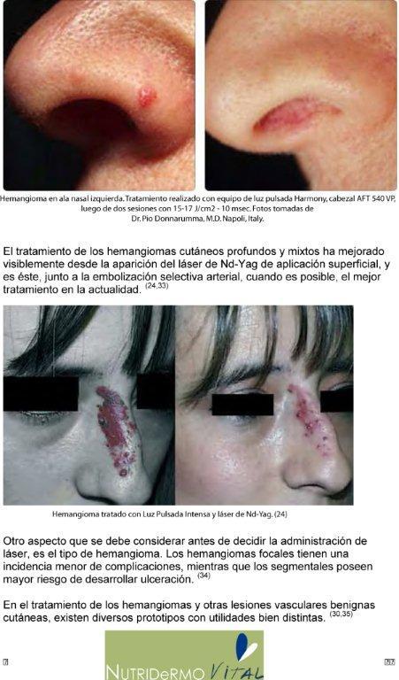 tratamiento con láser y ipl hemangiomas cutáneos y