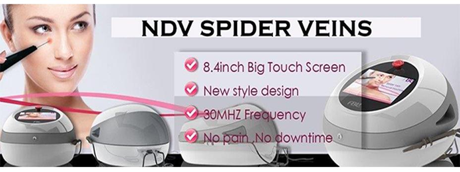 FALDON-NDV-SPIDER-VEINS