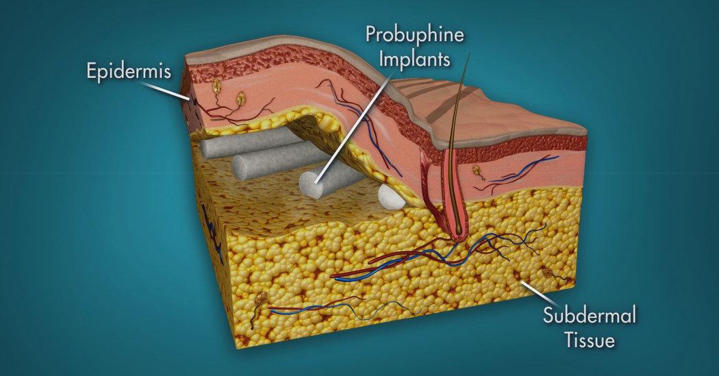 Probuphine  –  Un implante para luchar contra la adicción de opiáceos