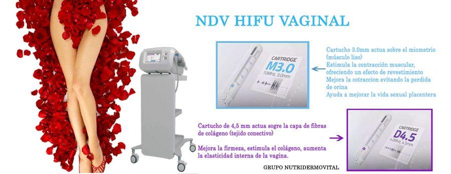 FALDON-NDV-HIFU-VAGINAL
