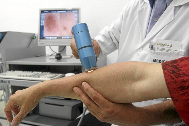 """Un """"gran avance""""  para derrotar  el melanoma, enfermedad que mata a una persona cada 52 minutos"""