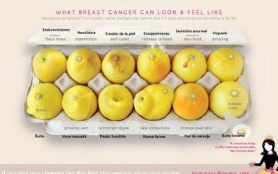 'Doce limones' para detectar de forma rápida el cáncer de mama,