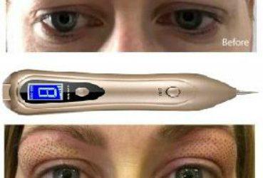 DGP de Plasma: ¿Estás buscando eliminar arrugas, líneas de expresión o reparar párpados caídos?¿Tu cara está empezando a mostrar signos de envejecimiento y quieres verte y sentirte más joven?