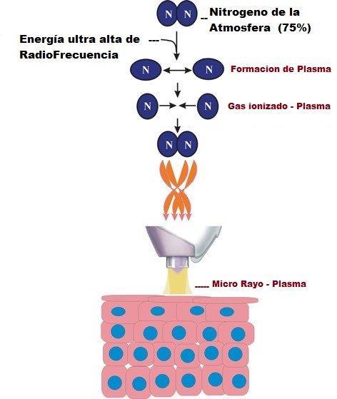 DGP de Plasm-A; Ionización del aire (Nitrógeno)
