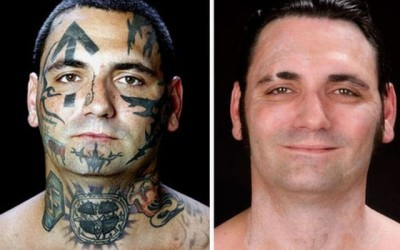 Estudio de EEUU sobre El uso de diferentes tipos de láseres para la eliminación de tatuajes decorativos
