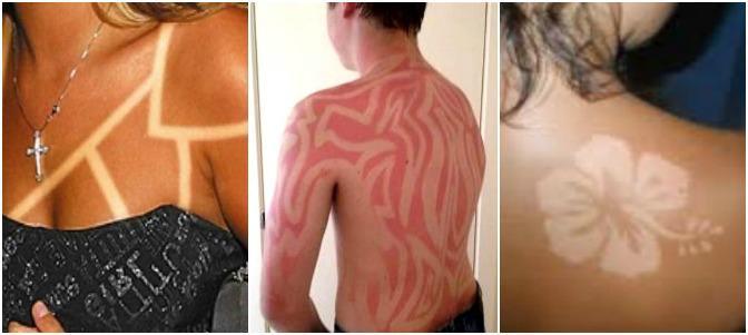 'Sunburn Art', la peligrosa moda de tatuarse con quemaduras solares