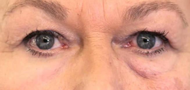 en-pruebas-con-humanos-se-ha-visto-que-reduce-las-bolsas-de-los-ojos-y-tambien-mejora-la-hidratacion-de-la-piel-olivo-labs-llc