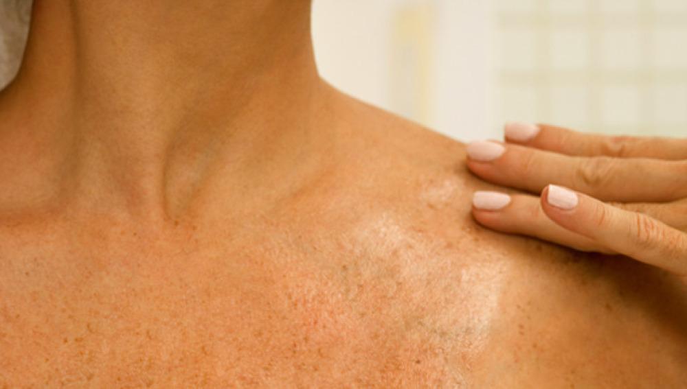El Ministerio de Sanidad ha autorizado ya la financiación del medicamento   Disponible en España el primer fármaco para el cáncer de piel más frecuente