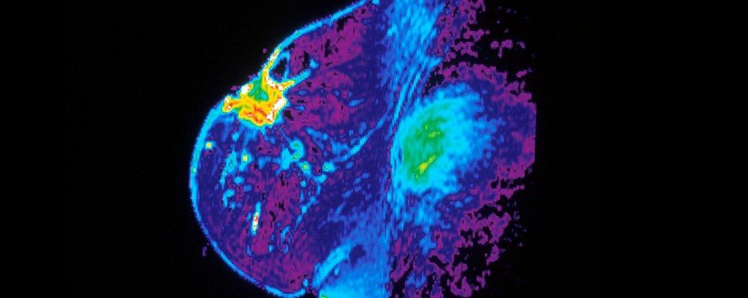 Estamos haciendo las resonancias de cáncer de mama al revés