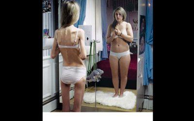 """""""Sobrepeso previo y rasgos obsesivos""""  Los trastornos alimentarios están comenzando en niñas de incluso 11 años"""