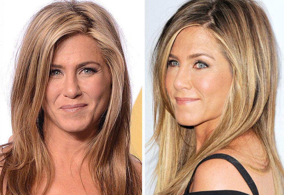Algunas Celebrities HIFU Facial – sistema HIFU (High-Intensity Focused Ultrasound).