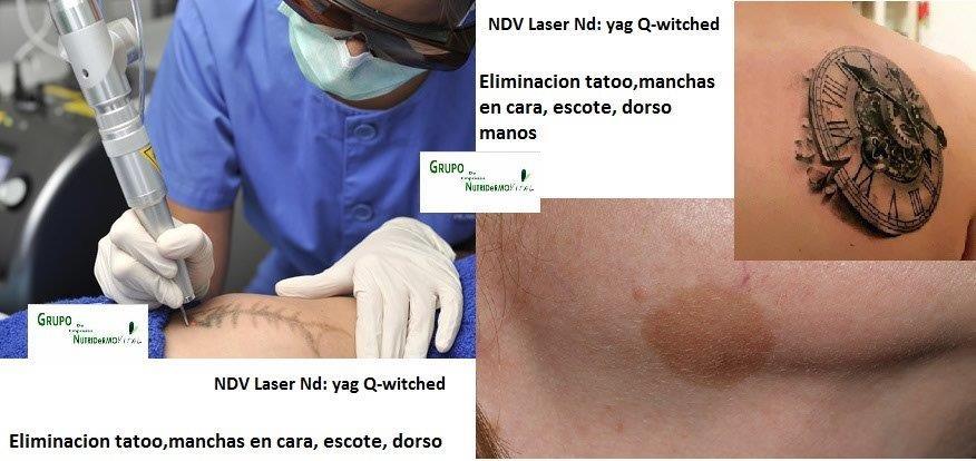 Láser Q-switched para eliminar tatuajes y manchas: cara, escote, dorso manos
