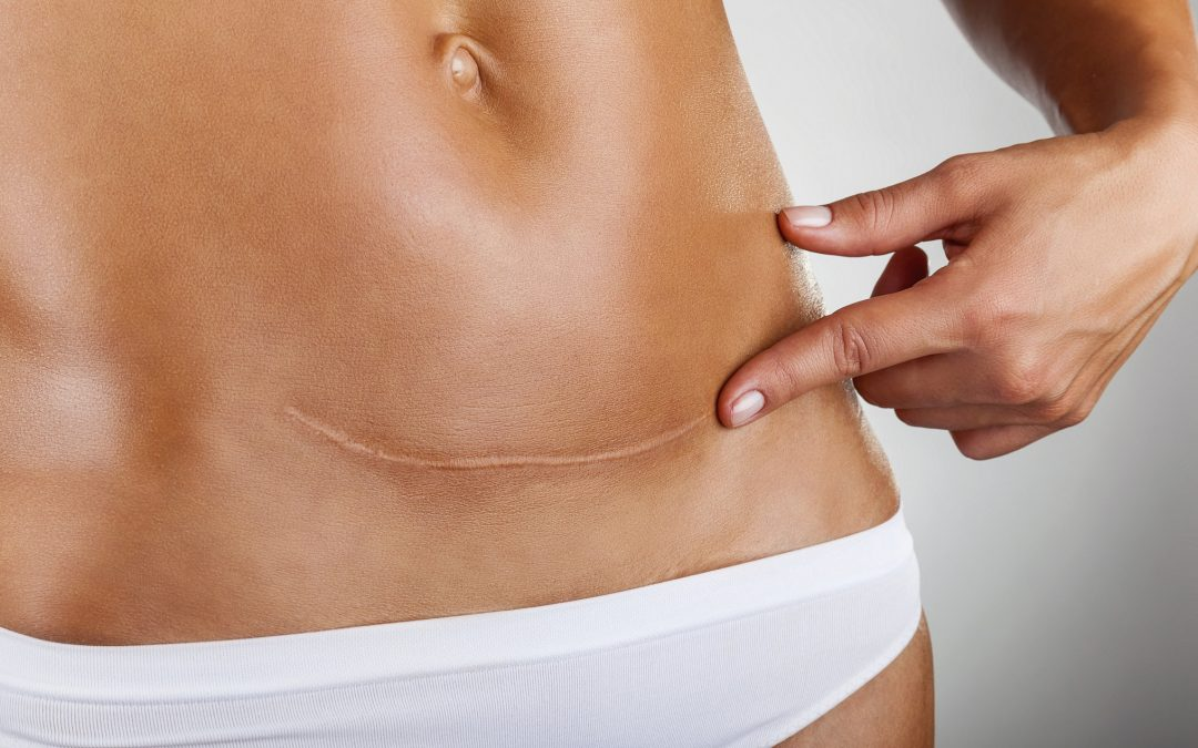 Cicatrices hipertróficas (queloides), tratamiento con (DGP ...