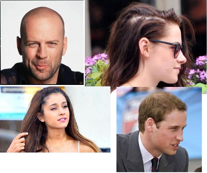 Alopecia Androgénica, Algunos mitos que a fuerza de uso parecen realidad