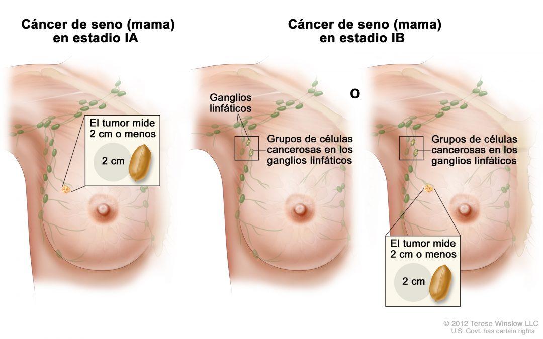 Descubren una proteína que mantiene dormidas las células metastásicas del cáncer de mama