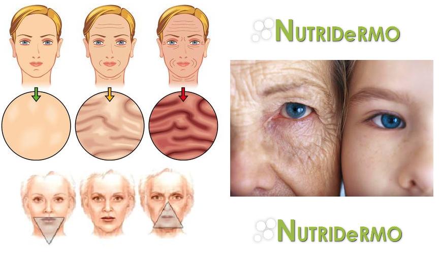 Las arrugas: Clasificación de los distintos tipos de arrugas en función de la fuerza que las causa, su profundidad o su origen