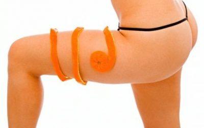 HIFU para el tratamiento de Celulitis escleroide (Lipodistrofia ginecoide, piel de naranja y/o piel de colchón)