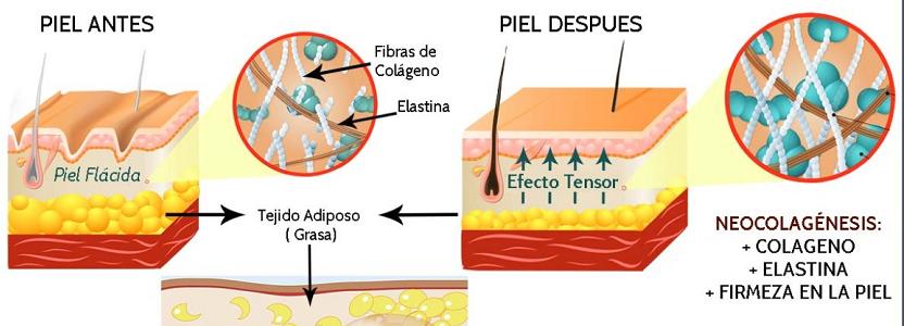 Comparación de la neocollagénesis y neoelastogénesis en cada capa de la dermis después de cada sesión de HIFU y RF monopolar