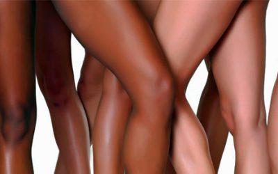 Los efectos secundarios de la depilación láser