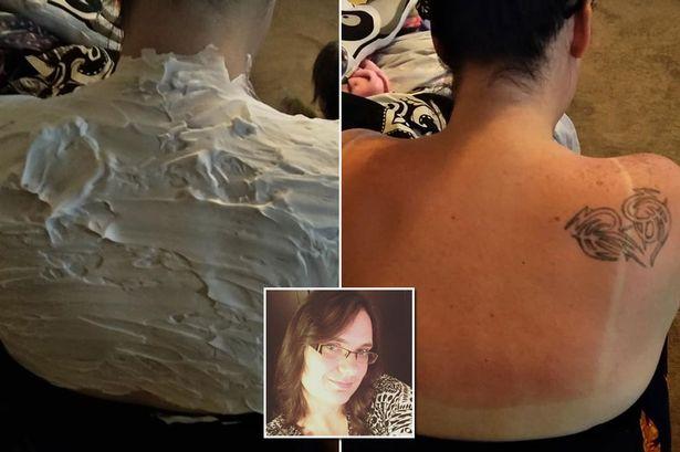 Cindie Allen-Stewart y su milagrosa cura para aliviar las quemaduras de sol en 30 minutos que esta arrasando en facebook