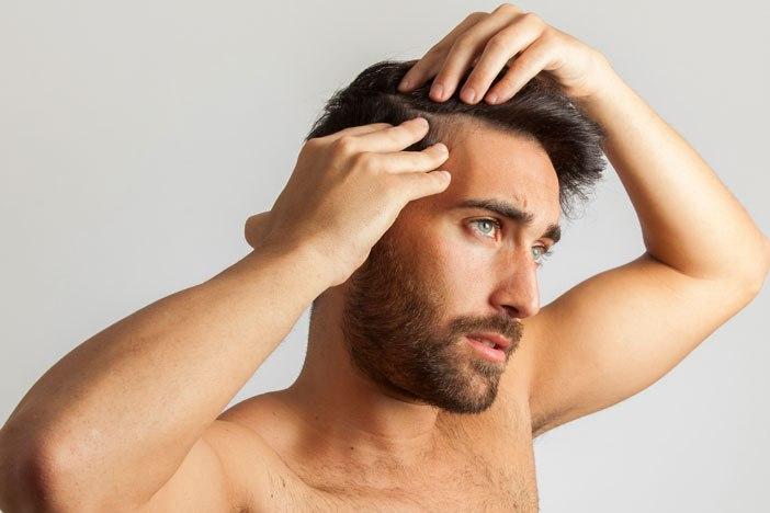 El Sandalore, ¿La solución a la Alopecia está enun ambientador?