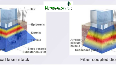 Láser diodo de barrido de transmisión por fibra óptica NDV FiberLaser de Diodo