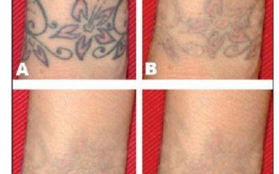 Los efectos secundarios más comunes de la eliminación de tatuajes con láser QS incluyen cicatrización y despigmentación.