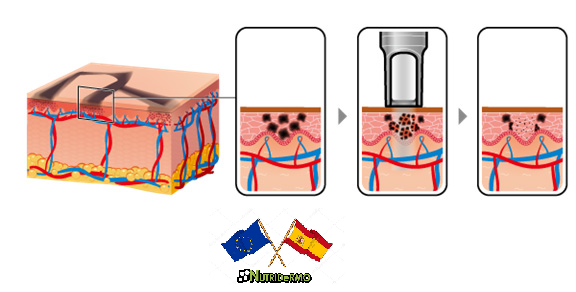 La repigmentación tras la hipopigmentación provocada por el tratamiento de eliminación de tatoo con láser