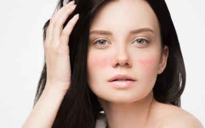 Tratamiento de Las Telangiectasias Facialescon láser de diodo
