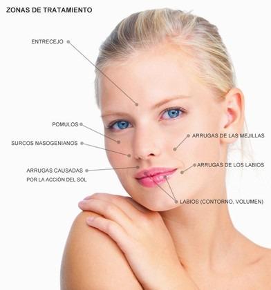 Rellenos Faciales Dérmicos (Ácido Hialurónico, Toxina Botulínica), Técnica de Aplicación