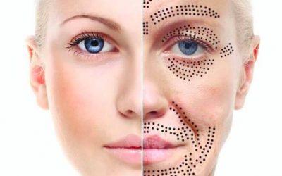 Plasma para el rejuvenecimiento, estiramiento y reparación de la piel