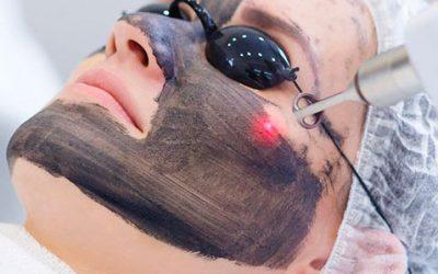 Hollywood Peeling (Peeling de Carbono con Laser de ND: YAG), Fototerapia Facial