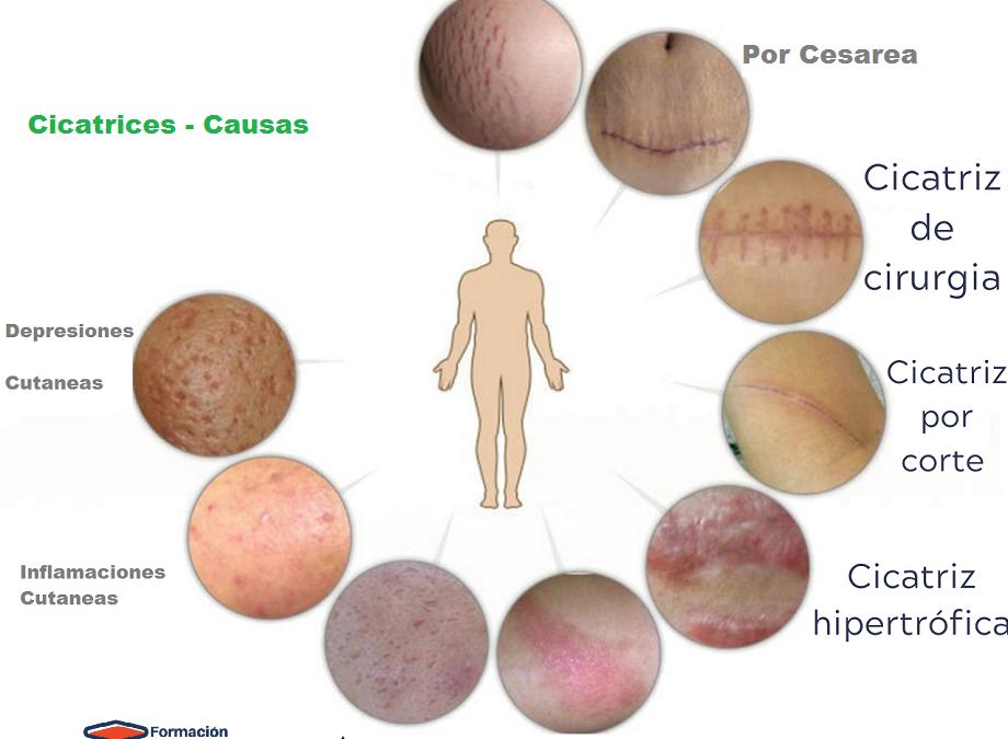 Evaluación y tipos cicatrices