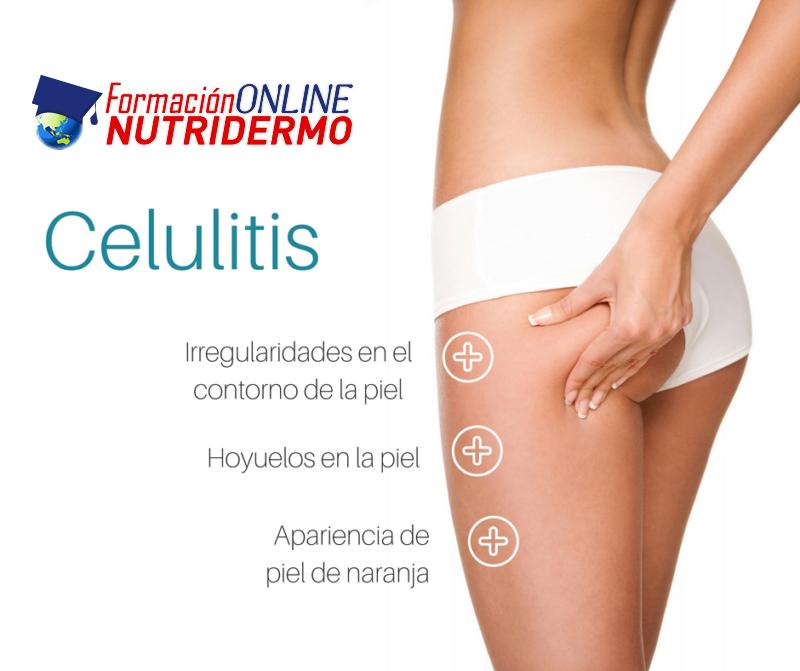 ¿Cómo puedo saber qué tipo de celulitis tengo y cuál es el tratamiento más adecuado?