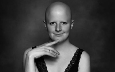 Alopecia areata Femenina.Un proceso de pérdida de cabello, hay quedesculpabilizarlas y reducir el impacto emocional para que tengan calidad de vida.