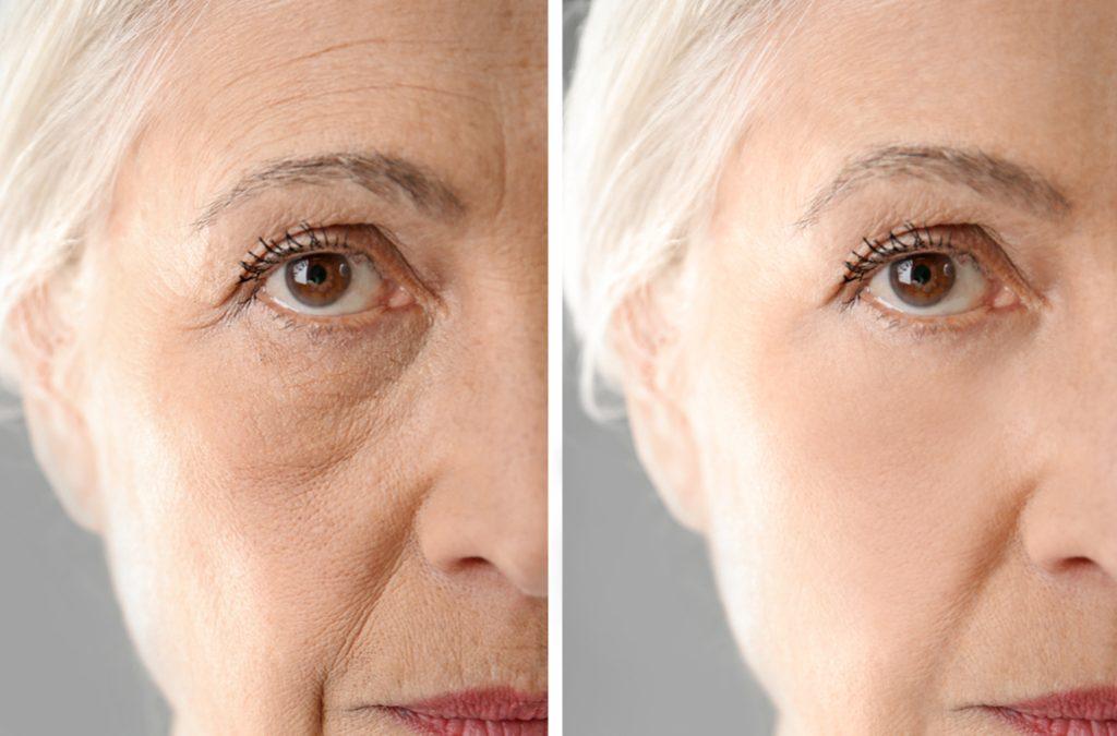 ¡beauty time! Conseguir unlifting facialsin cirugía, una exclusiva combinación altamente eficaz con Electrocosmecéutica