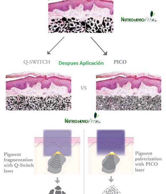 Eliminación de Tatuajes (Tatoo). Averigua si tu Laser Nd:Q-Switched trabaja en Picosegundos o en Nanosegundo