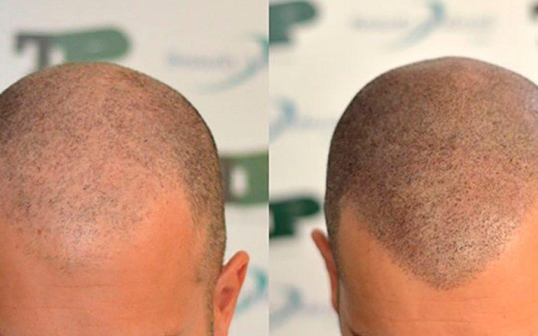 Tricopigmentación – Micropigmentación capilar