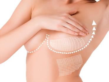 Lipofilling mamario
