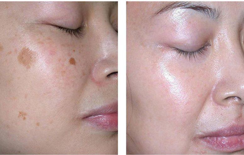 Técnicas Laser para quitar las manchas de la piel ¿con que laser y para que?