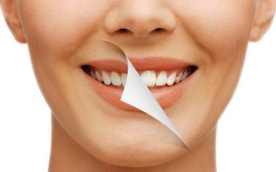 3 sencillas recomendaciones para mantener unos dientes blancos