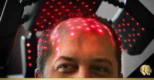 Fototerapia en la alopecia. Luz LED un tratamiento para la caída del cabello