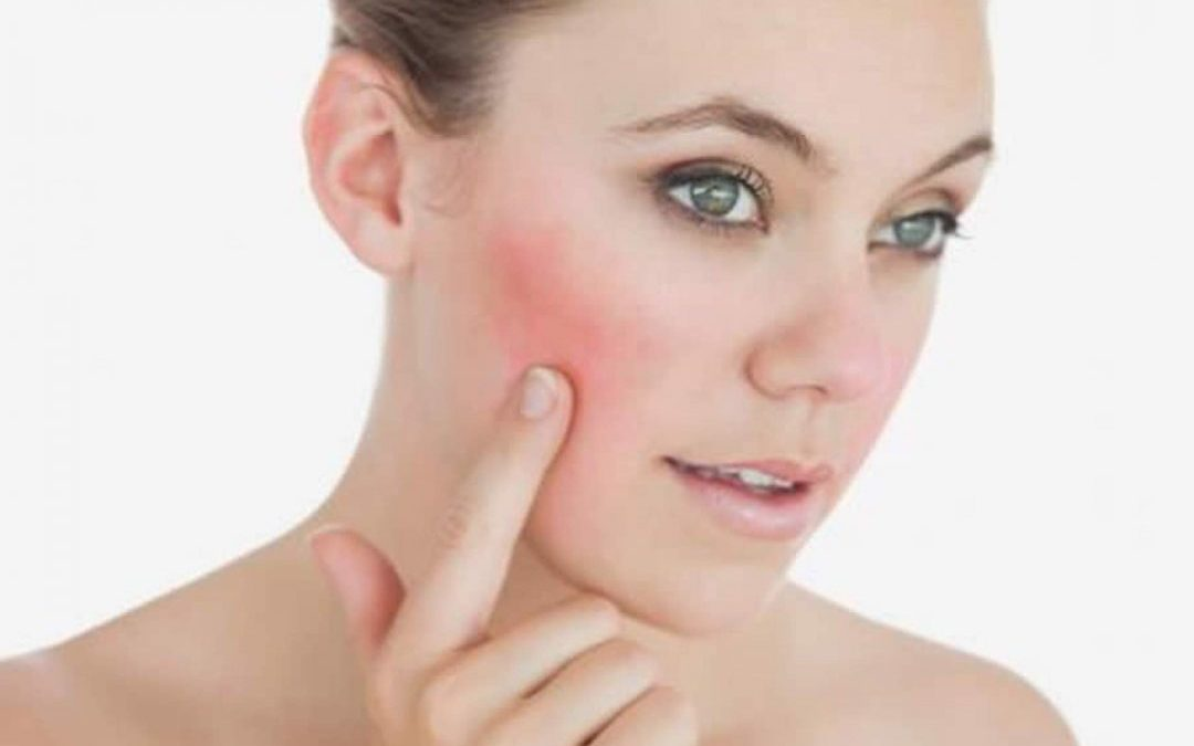 Guía para el tratamiento de la rosácea pápulo-pustular, eritemato-telangiectásica y fimatosa