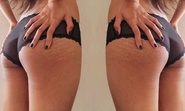 Eliminar las estrías con láser, Operación Bikini 2021