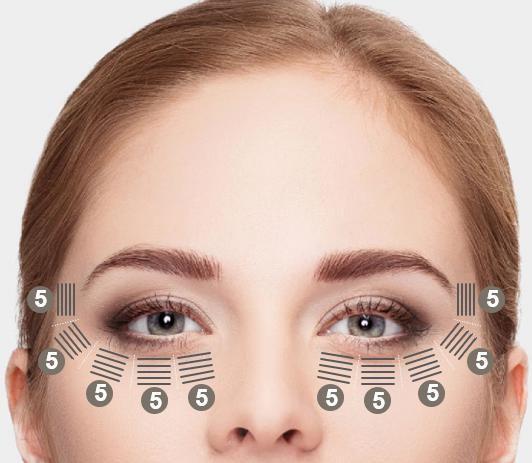 NDV 7D HIFU con tecnología MMFU Y Sonda / Transductor de 2.0mm con el que podrás trabajar /aplicar en Contorno de ojos.